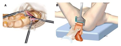 example of prone position of surgical procedures